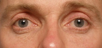 Restylane upper eyelid hollows before 219711