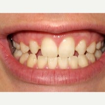 18-24 year old woman treated with Dental Bonding before 2044787