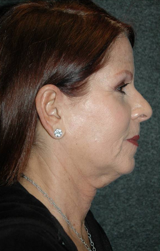 Late 50's woman treated with facelift before 887984