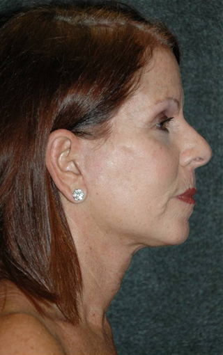 Late 50's woman treated with facelift after 887984