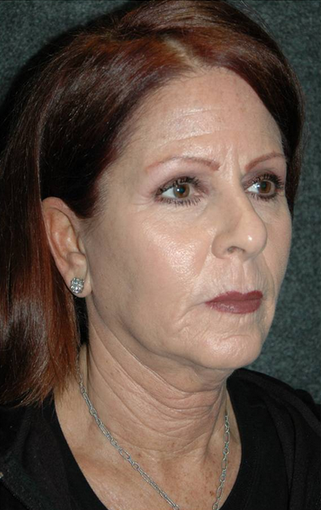 Late 50's woman treated with facelift 887984