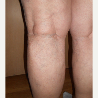 65-74 year old woman treated with Sclerotherapy after 3161471