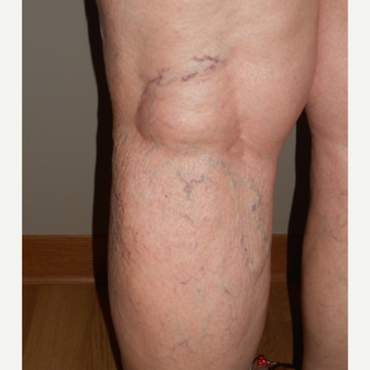 65-74 year old woman treated with Sclerotherapy before 3161471