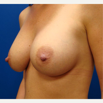 25-34 year old woman treated with Breast Implants after 3670302