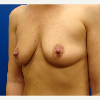 25-34 year old woman treated with Breast Implants before 3670302