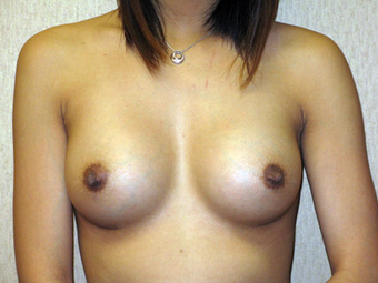 Silicone Breast Augmentation after 330775