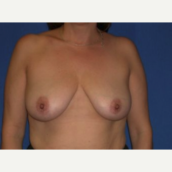 35-44 year old woman treated with Breast Augmentation before 3220089