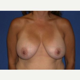 35-44 year old woman treated with Breast Augmentation after 3220089