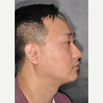 35-44 year old man treated with Septoplasty 8 months post-op before 3500030