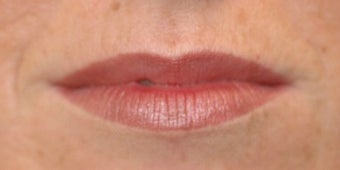 Juvederm for Lips before 872393