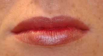Juvederm for Lips after 872393