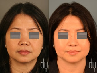 Asian rhinoplasty with rib cartilage harvest, and dorsal augmentation with diced cartilage fascia (DCF).