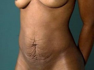 Tummy Tuck before 1078130
