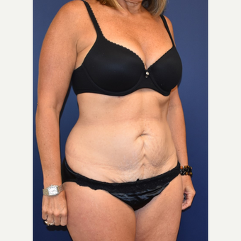 45-54 year old woman treated with Liposuction before 3744528