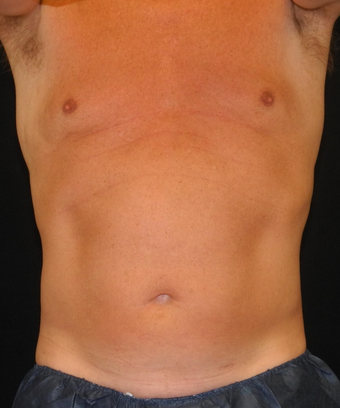 54 yo male - CoolSculpting