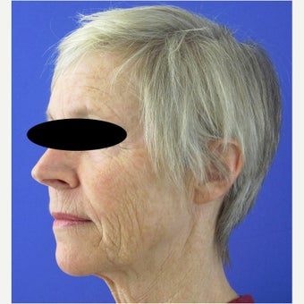 55-64 year old woman treated with CO2 Laser, Smartlipo, Filler and Xeomin before 2637262