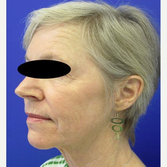 55-64 year old woman treated with CO2 Laser, Smartlipo, Filler and Xeomin after 2637262
