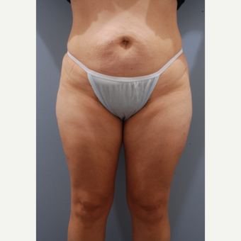 35-44 year old woman treated with Tummy Tuck before 3590134