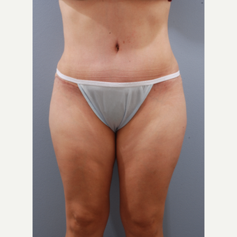 35-44 year old woman treated with Tummy Tuck after 3590134