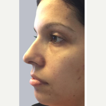 25-34 year old woman treated with Voluma after 2225668