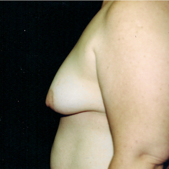 35-44 year old woman treated with Breast Lift with Implants before 3236146