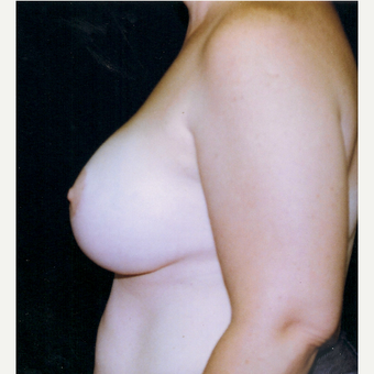 35-44 year old woman treated with Breast Lift with Implants after 3236146
