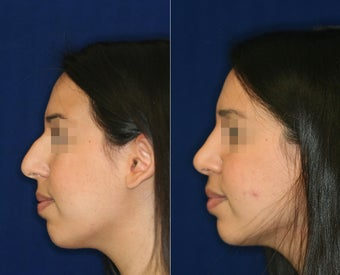Nose Surgery before 1430762