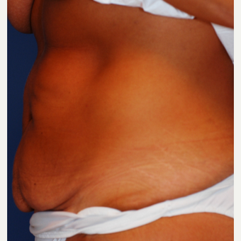 35-44 year old woman treated with Tummy Tuck before 3619112