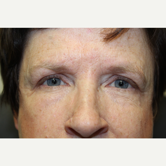 55-64 year old woman treated with Ptosis Surgery after 3686704