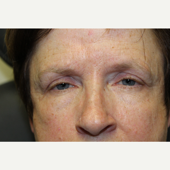 55-64 year old woman treated with Ptosis Surgery before 3686704