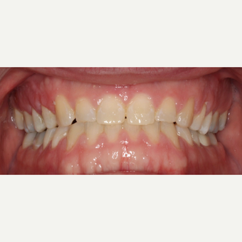 25-34 year old man treated with Braces after 3188471