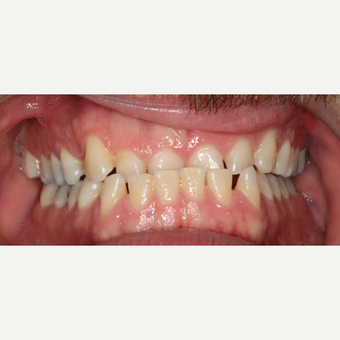 25-34 year old man treated with Braces before 3188471
