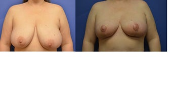 43 year old woman treated with Breast Reduction