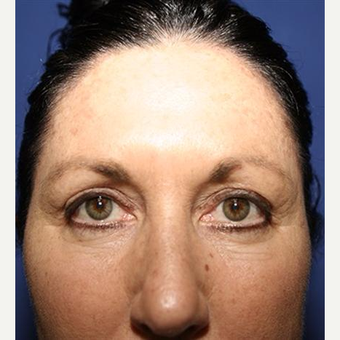 45-54 year old woman treated with Eyelid Surgery before 3093403