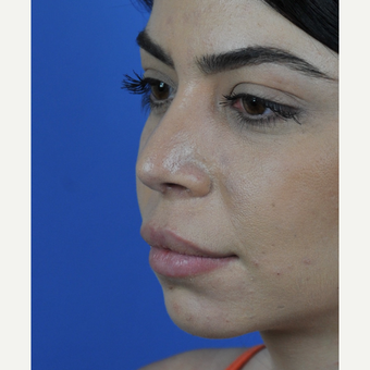 Open Revision Rhinoplasty after 3011176