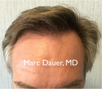 45-54 year old man treated with Hair Transplant after 3371779