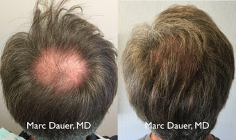 45-54 year old man treated with Hair Transplant 3371779