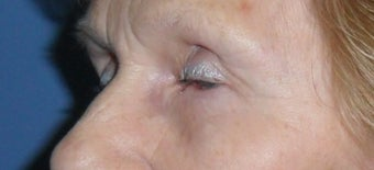 Lower Blepharoplasty 1181653