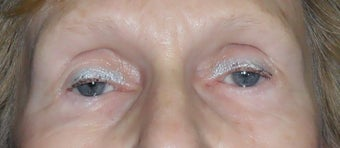 Lower Blepharoplasty after 1181653