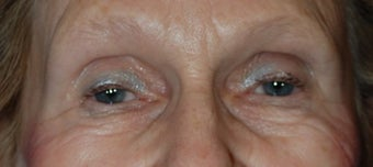 Lower Blepharoplasty before 1181653