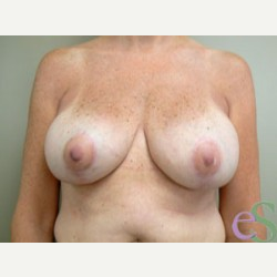 Breast Implant Revision after 3373472
