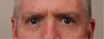 55-64 year old man treated with Eyelid Surgery after 3658924