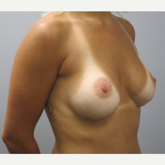 25-34 year old woman treated with Breast Augmentation after 3482498