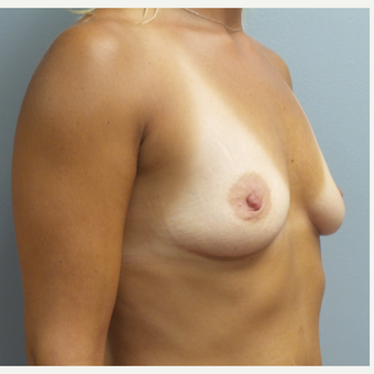25-34 year old woman treated with Breast Augmentation before 3482498