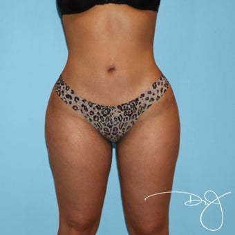 Liposuction after 2067979