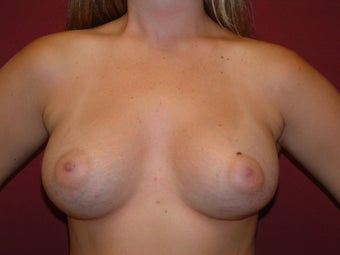 Breast Augmentation after 683129