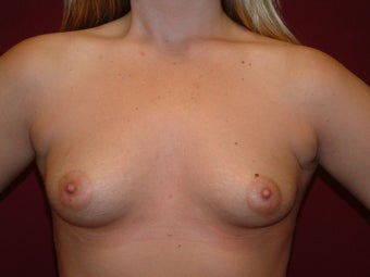 Breast Augmentation before 683129