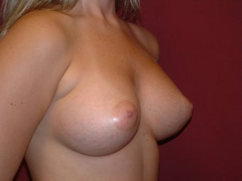 Breast Augmentation 683129