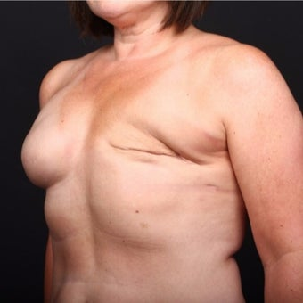 45-54 year old woman treated with Breast Fat Transfer before 2022248