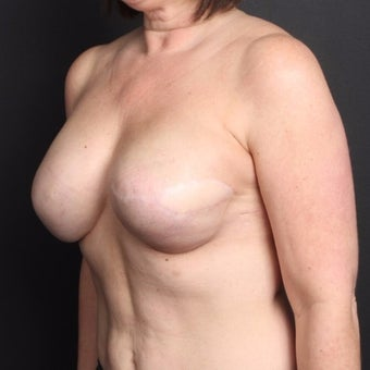 45-54 year old woman treated with Breast Fat Transfer after 2022248